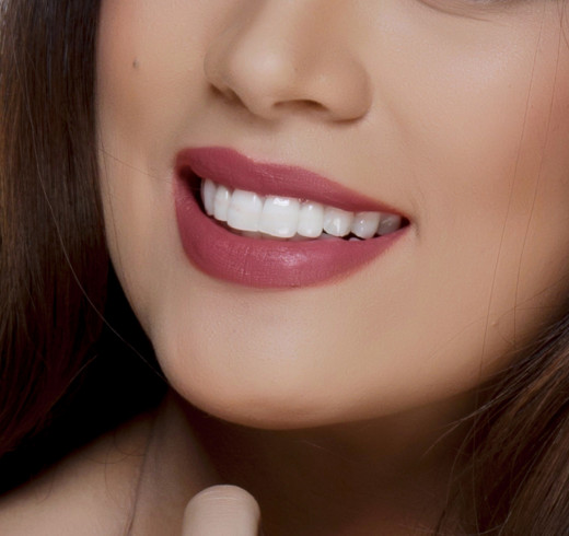 pearl white teeth after the teeth whitening procedure at gaoc