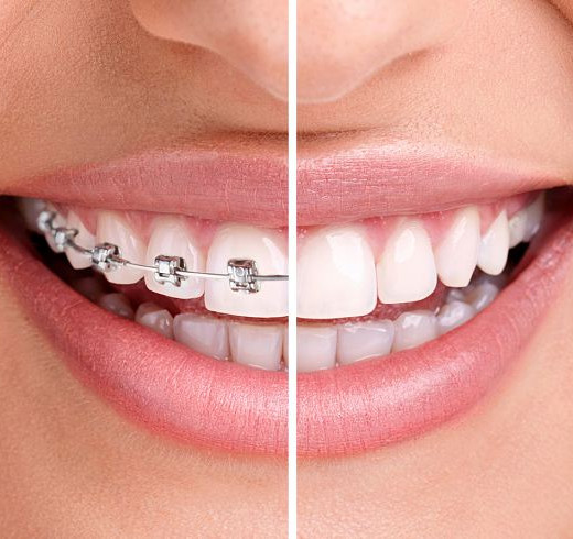 Before and after applying braces at GAOC