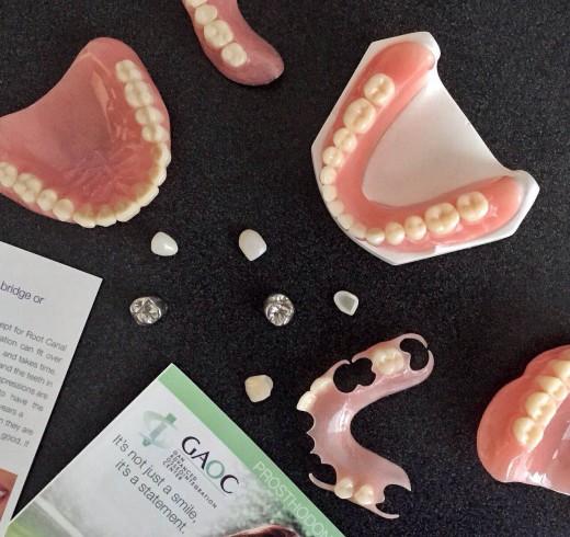 Prosthodontics sample at GAOC (Dental crown, Bridge, Dentures and Dental Veneers)